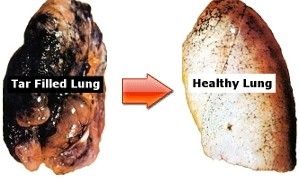 Lung Cleanse - Smoker vs Non-Smoker