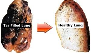 Smokers Skin Vs Nonsmoker