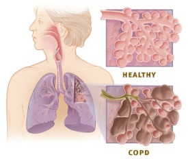 Lung detox - Copd vs healthy lung