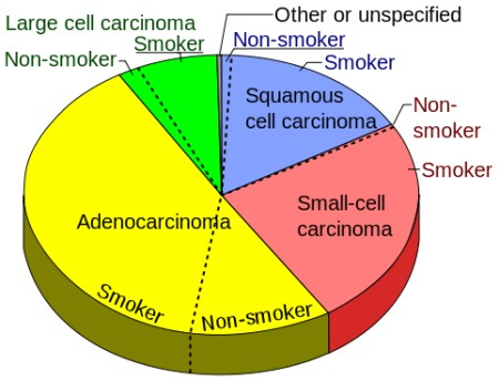 Second hand smoke facts - Pie chart of lung cancers